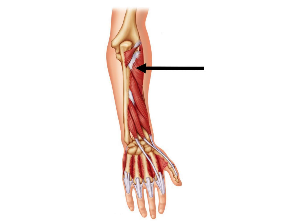 The muscles of the arm and hand - Anatomy-Medicine.COM