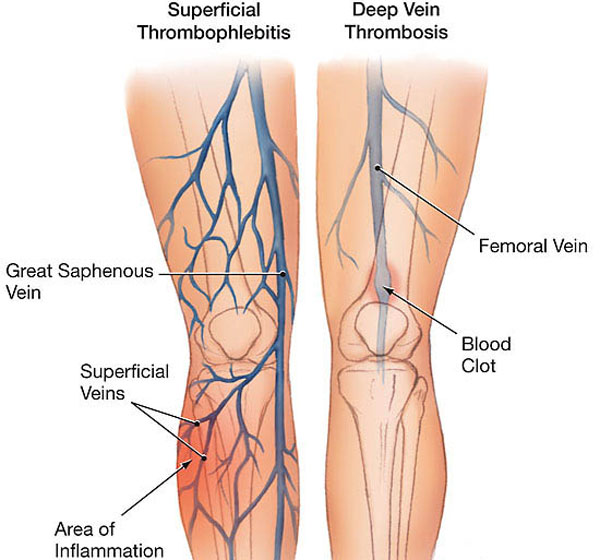 surface vein thrombosis