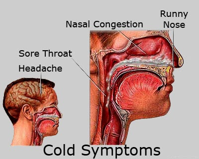 The head cold