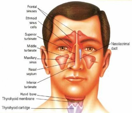 The sinusitis
