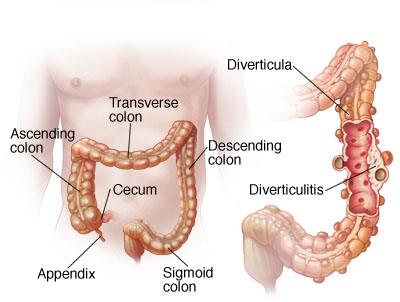 The diverticulitis