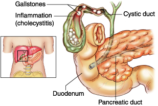 The Cholelithiasis