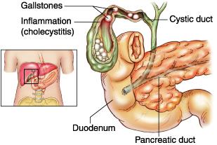 The Cholelithiasis