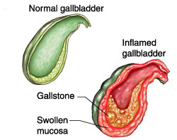 The Acute Cholecystitis