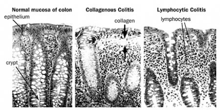 weight loss and microscopic colitis