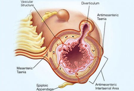 The diverticulosis