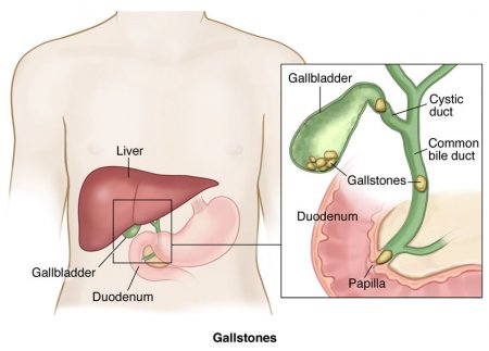 Gallstones and Bile Duct Stones