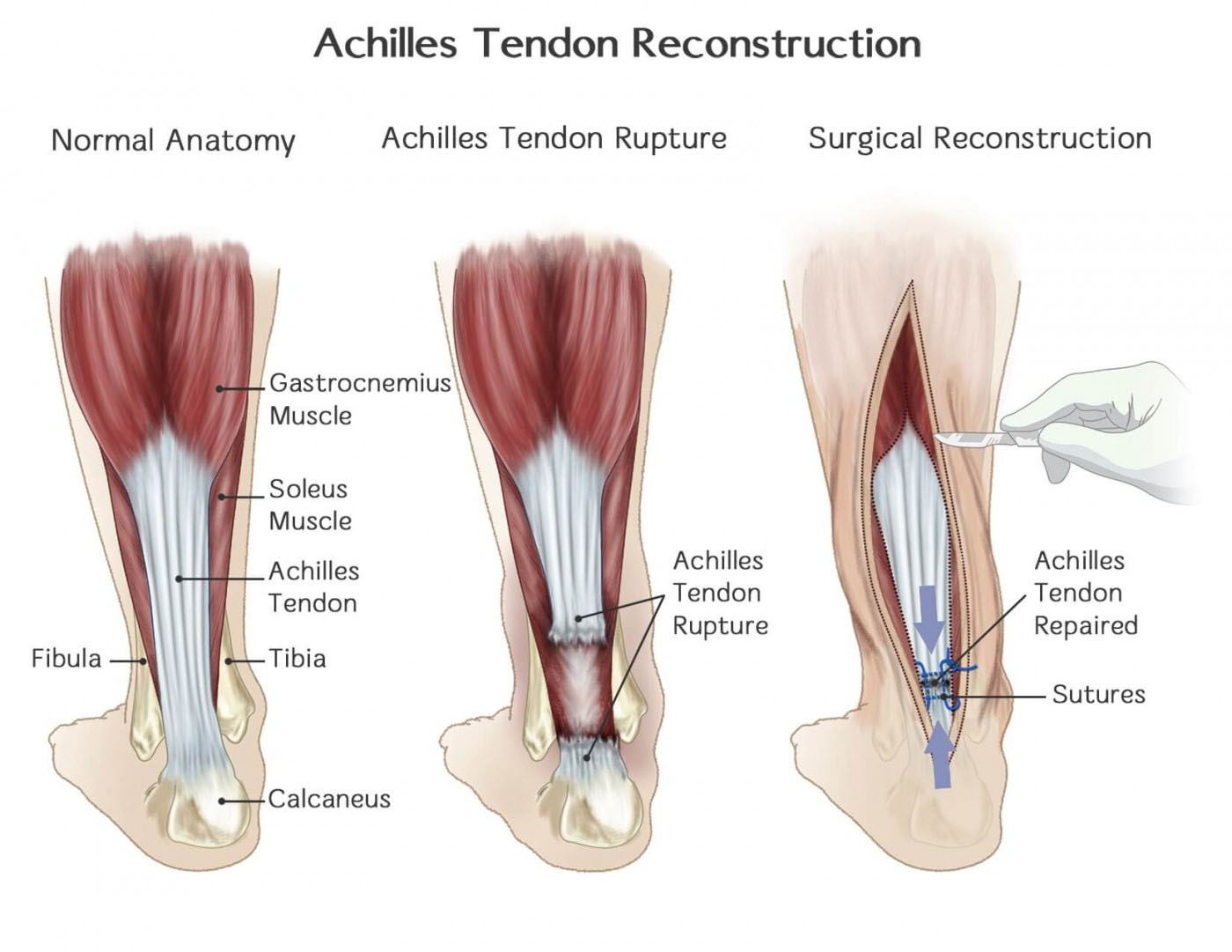 Achilles tendon rupture | Symptoms of the Achilles tendon rupture ...