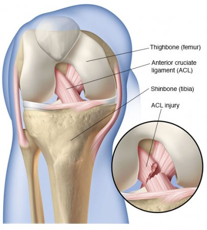 ACL injury | Tearing of the anterior cruciate ligament